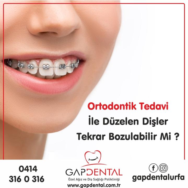 Ortodontik tedavi ile düzelen dişler tekrar bozulabilir mi?